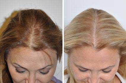 , PRP Hair Restoration