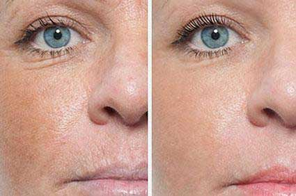 , Facial Aesthetics