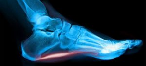 , TenJet for Chronic Tendon Pain