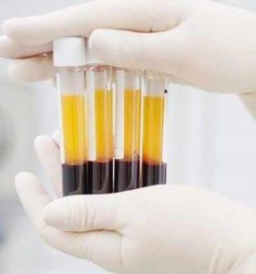 , Platelet-Rich Plasma Therapy (PRP)
