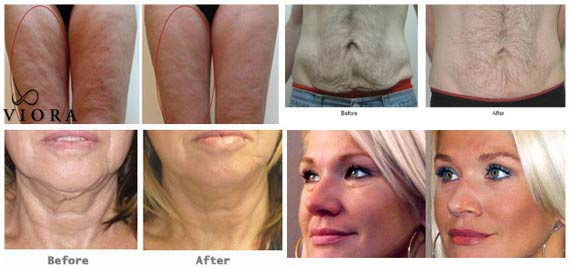 , Skin Rejuvenation
