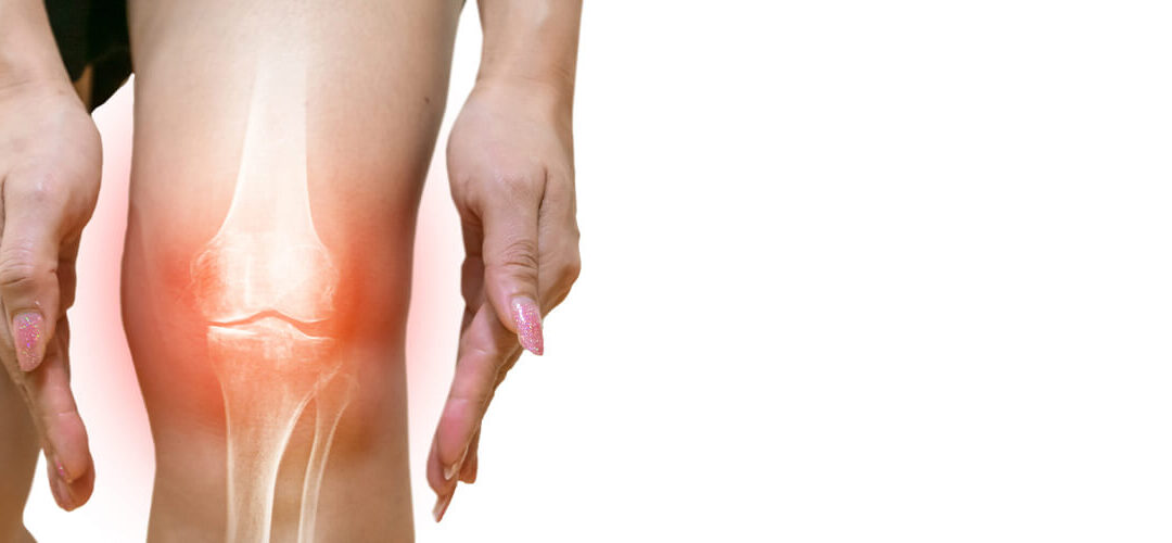 Ways To Improve Knee Pain