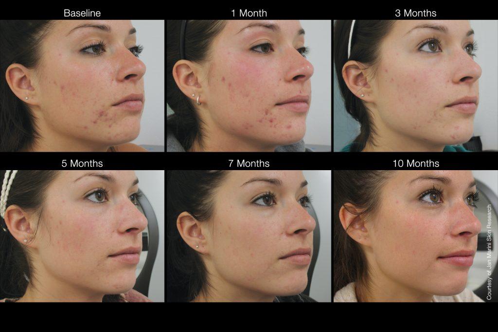 , Skin Care